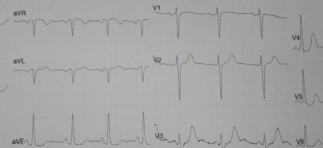 ECG traces